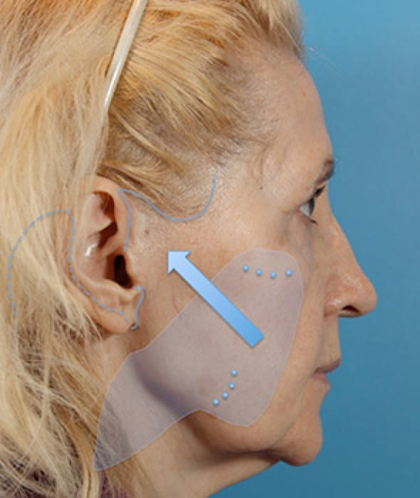 Best Rhinoplasty Surgeon Toronto