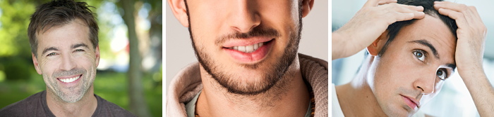 Eyebrow & Facial Hair Restoration Toronto