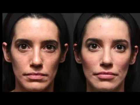 Juvederm Injections in Toronto