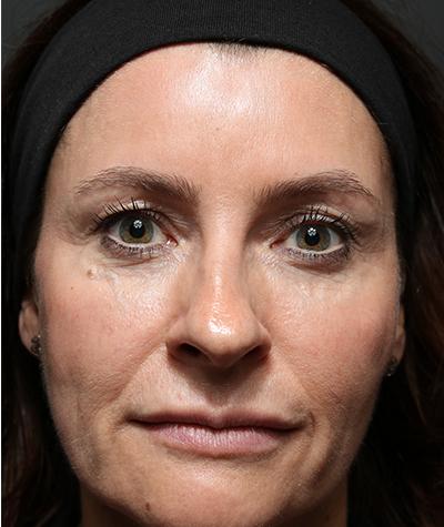 Ontario facial fillers