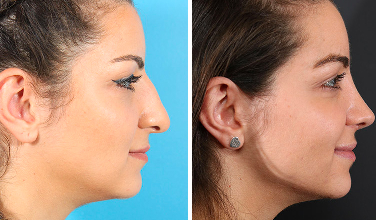 Image result for Complete procedure of nose surgery- Rhinoplasty in Toronto
