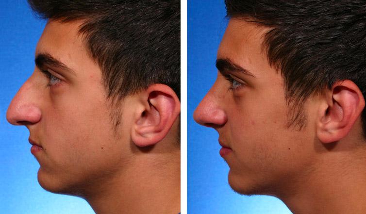 Rhinoplasty Toronto   Nose Job Cost Ontario - Dr  Asaria